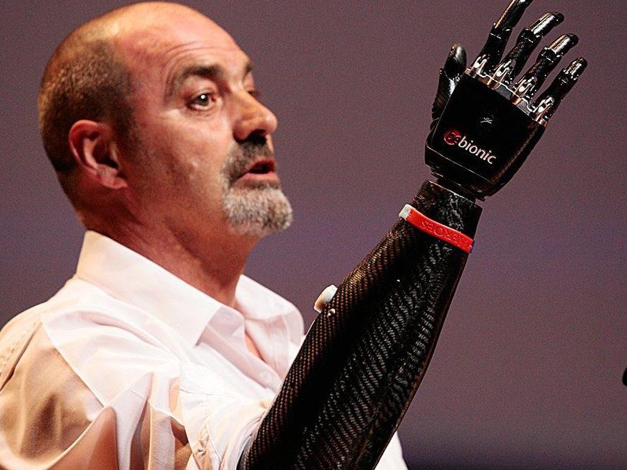 Carbon Fibre Robotic Arm